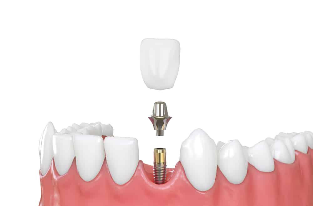 Know Whether a Patient is Sedated before Getting a Dental Implant